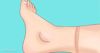 Ai descoperit asemenea urme pe picioare? Ai putea avea o boala grava