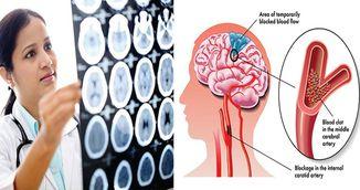 Semne care iti spun ca durerea de cap pe care o ai poate fi fatala!