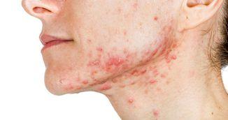 Cele mai eficiente masti pentru acnee. Le prepari la tine acasa